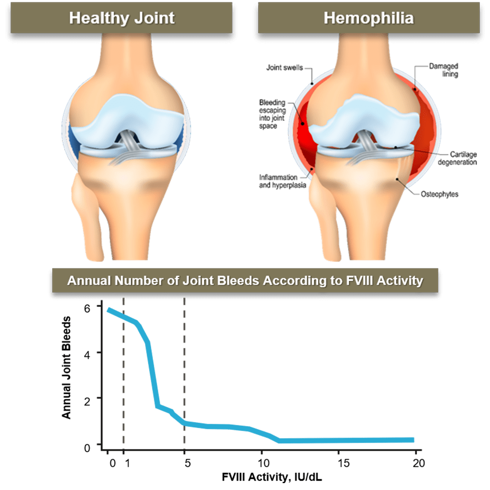 Cross section of a Healthy Joint and a Joint with Hemophilia and Graph depicting annual number of Joint Bleeds According to FVIII Activity